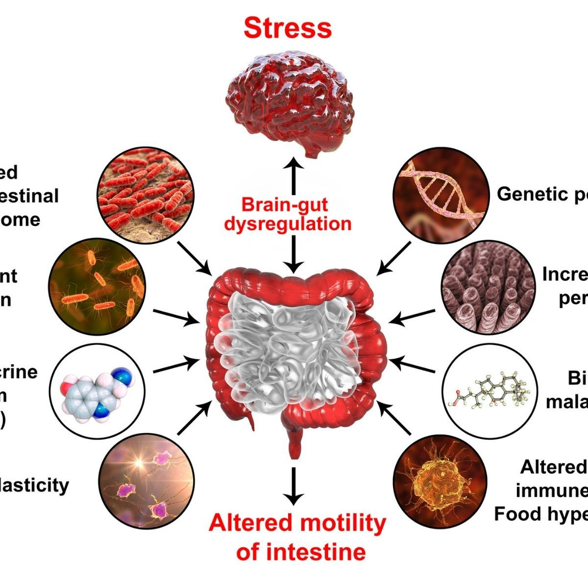 Gut brain axis infographic showing how stress leads to brain-gut dysregulation and altered intestinal motility.